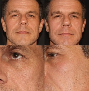 derma-peel-before-after